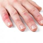 Haut an den Fingern reagiert allergisch auf bestimmte Stoffe