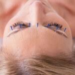 Akupunktur ist eine in Deutschland sehr beliebte chinesische Heilmethode.
